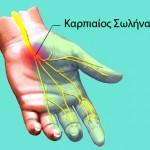 karpiaio_sindromo