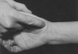 Αρθρίτιδα Αντίχειρα: Ψηλάφηση