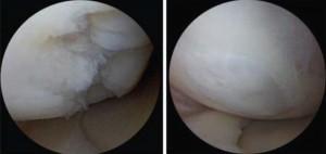 Αρθροσκοπική αξιολόγηση γονάτου πριν και μετά από αυτόλογα βλαστοκύταρρα