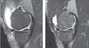 μαγνητική τομογραφία αυτόλογα βλαστοκύταρρα
